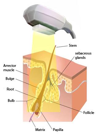 schema-hair-removal